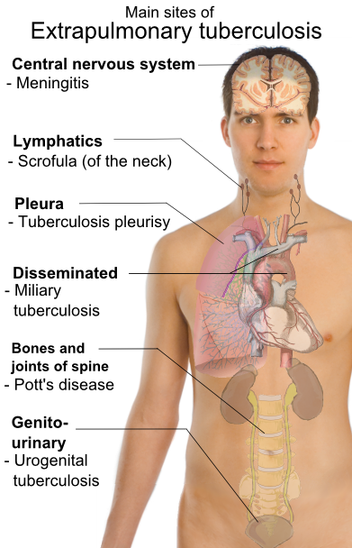 Extrapulmonary_tuberculosis_symptoms